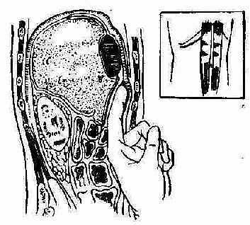 图示皮肤切口的位置,是在右侧肋缘平行.切开腹壁肌层和横筋膜