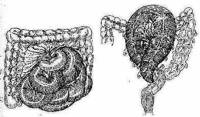 (1)全小肠扭转(已坏死) (2)乙状结肠扭转