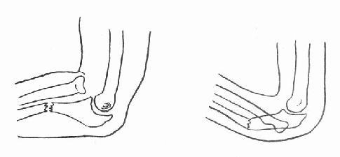 第六节 尺骨上1 3骨折合并桡骨头脱位