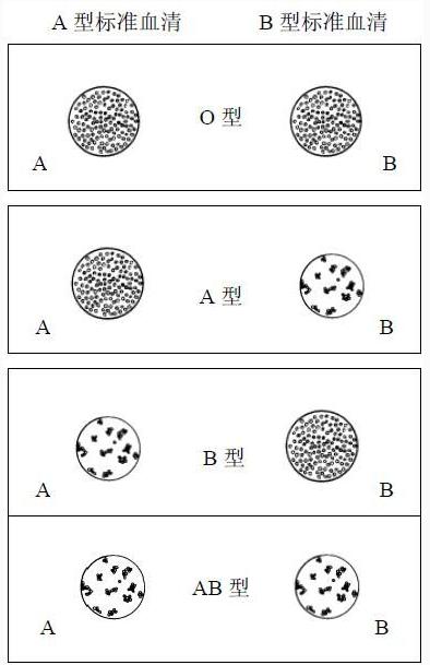 abo血型鉴定实验原理与方法步骤