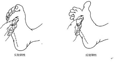 动物 简笔画 手绘 细菌病毒