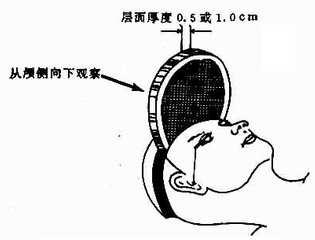中樞神經系統CT檢查方法是什么樣的?