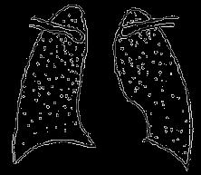护理专业课:小儿急性粟粒型肺结核发病机制&临床表现