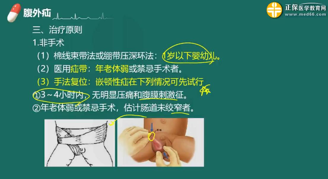 医疗护理专业课--腹外疝的治疗原则及护理措施(附例题)