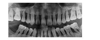 【第1单元】口腔助理医师综合笔试模拟试题A3A4选择题(二)