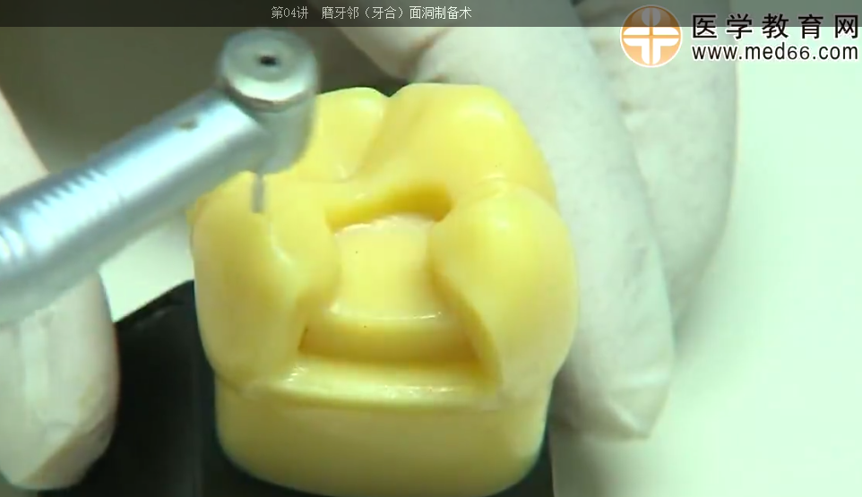 磨牙邻(牙合)面洞制备术课程讲解-医学教育网